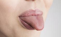 Почему появляется налет на языке коричневого цвета?
