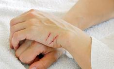 Порезы, царапины, ссадины на руках. Лечение в домашних условиях