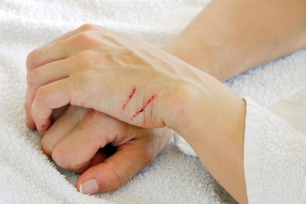 Что делать чтобы порезы зажили быстрее