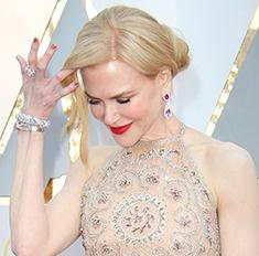 Что случилось с руками Николь Кидман на «Оскаре»