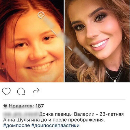 Анна Шульгина до и после