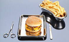 Хирургия ожирения – правда и мифы