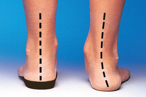 Коррекция стопы