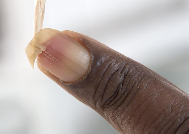 Несколько полезных способов, как восстановить ногти после повреждения