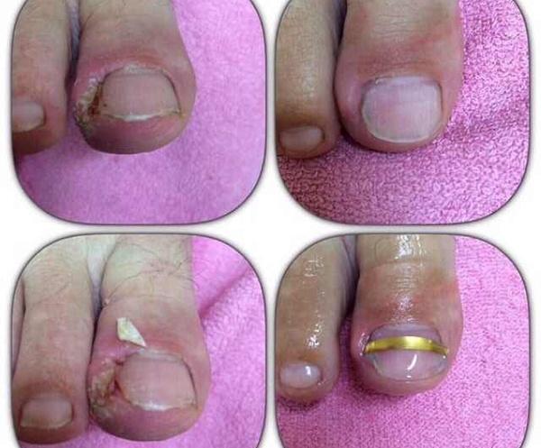 Что принять внутрь при грибке ногтей