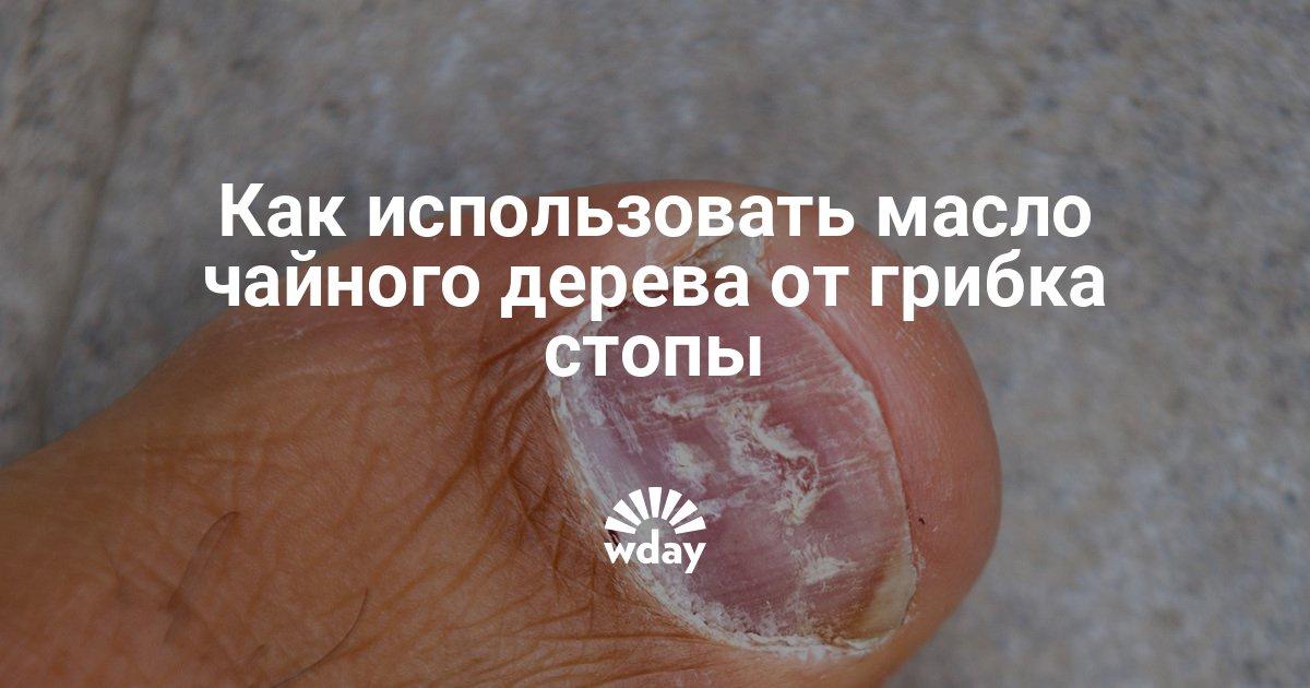 Масло Стоп Актив от грибка ногтей