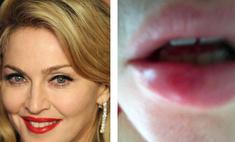 Мадонна шокировала поклонников разбитой губой и ушибами на ягодице