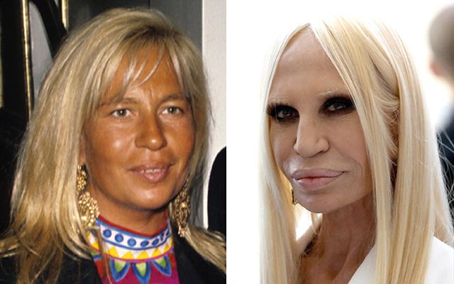 Донателла Версаче до и после пластики фото