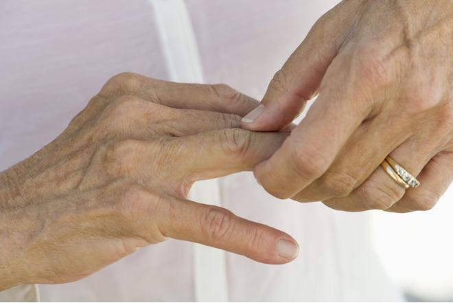Диета при артрозе суставов: советы