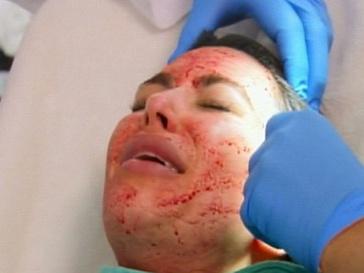 Ким Кардашьян во время процедуры