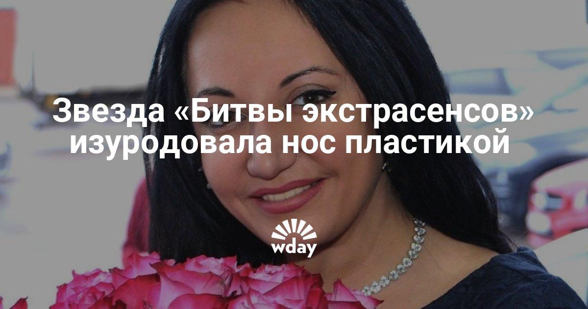 Звезда «Битвы экстрасенсов» едва не погибла после пластики носа