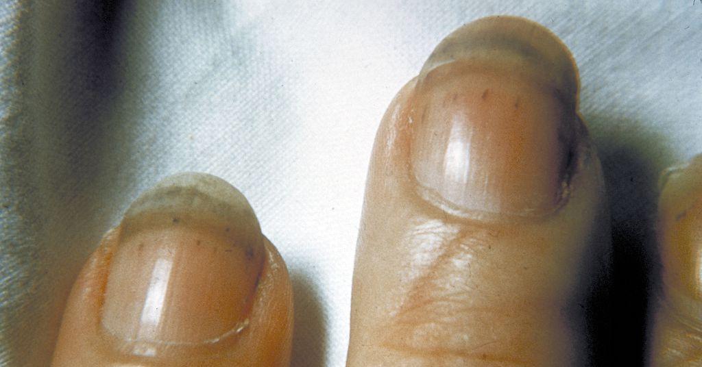 Почему на ногтях появляются тёмные полоски