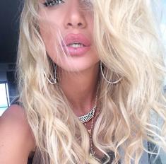 Виктория Лопырева увеличила губы