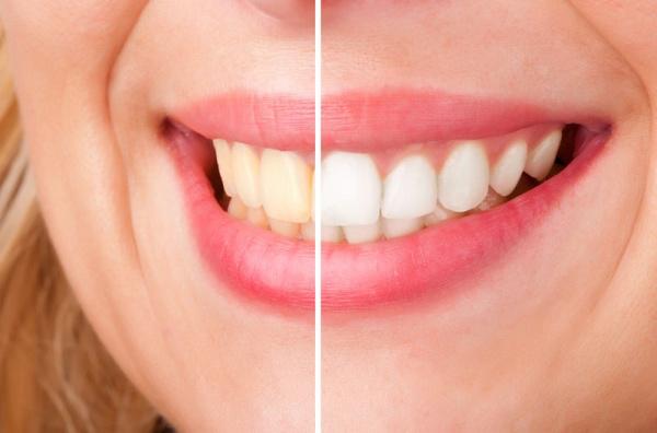 Способы отбеливания зубов активированным углем