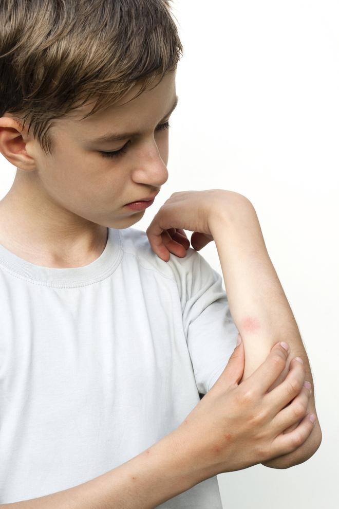 облазит кожа на руках ребенка