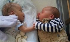 Младенец держал за руку брата-близнеца на грани смерти