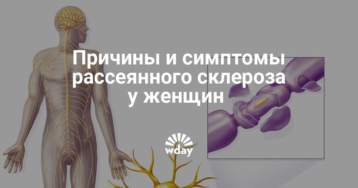 Первые симптомы рассеянного склероза у женщин