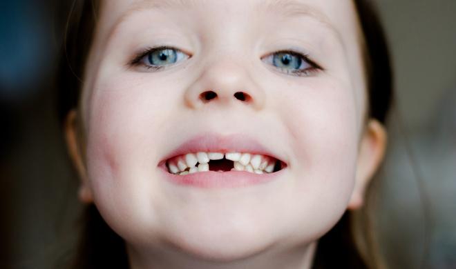К чему снится выпавший зуб