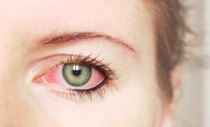 Причины и способы устранения красных глаз