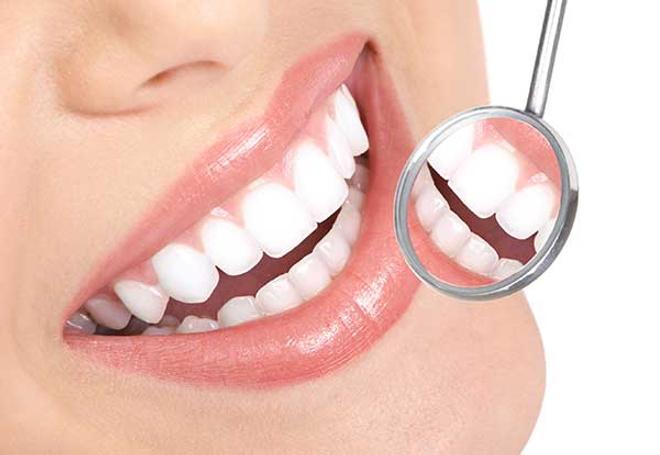 Отбеливание зубов, профессиональное отбеливание зубов