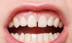 Исправление диастемы – щели между передними зубами
