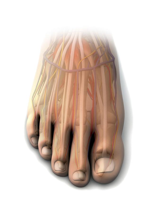 Причины сросшихся пальцев на ногах