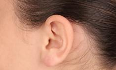 Отопластика - хирургическая коррекция формы ушей