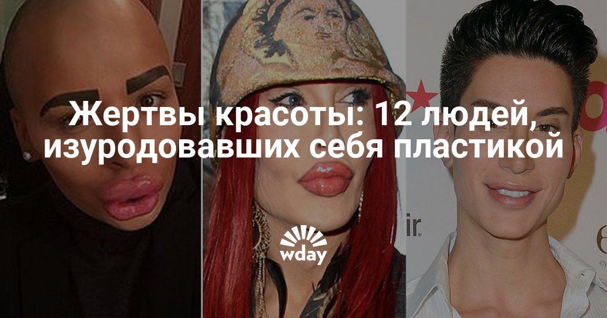 Жертвы красоты: 12 людей, изуродовавших себя пластикой