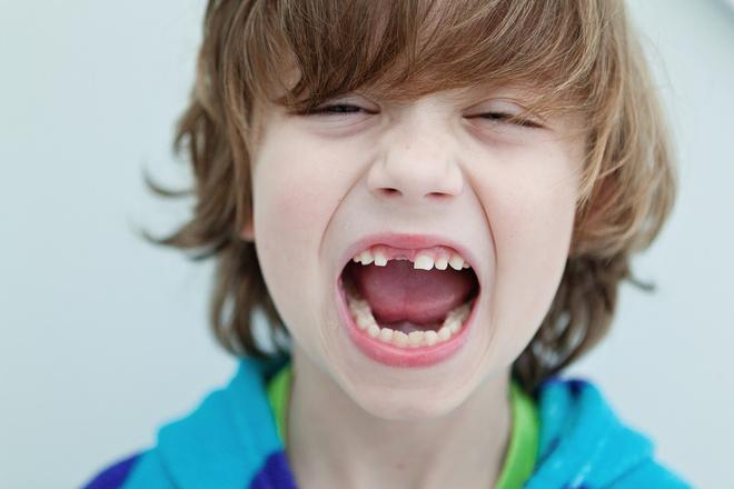 схема выпадения зубов у детей