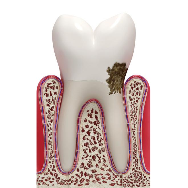 снять зубной камень