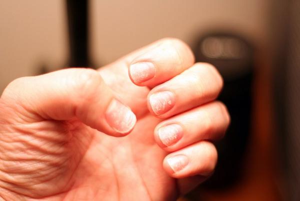 Что делать если расслаиваются ногти
