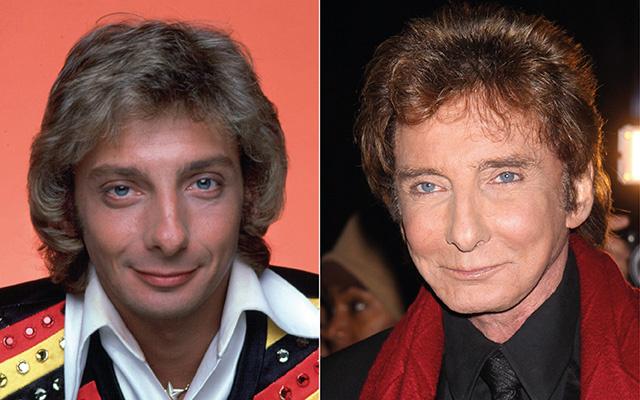 Барри Манилоу до и после пластики фото