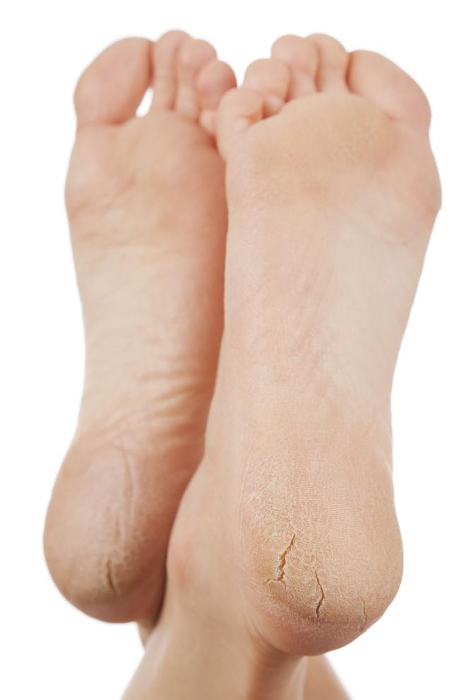 почему трескаются пятки на ногах