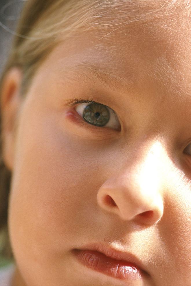 как вылечить халязион у ребенка