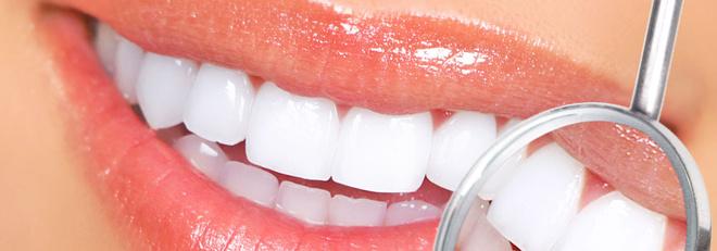 Отбеливание зубов по доступным ценам в Казани
