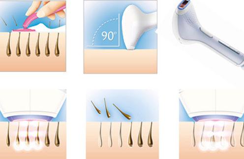 Philips Lumea помогает быстро и безболезненно избавиться от волос