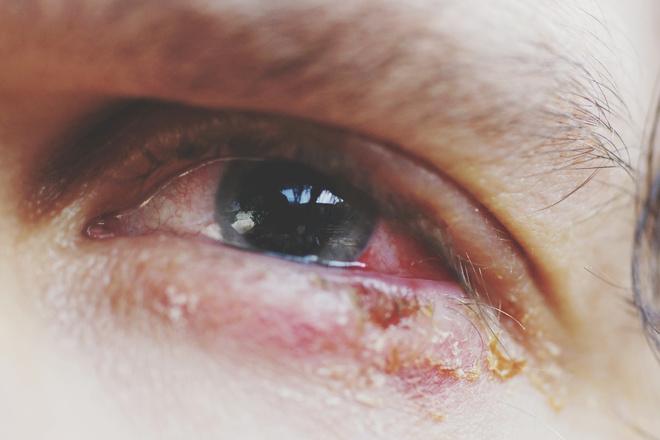 краснеют глаза
