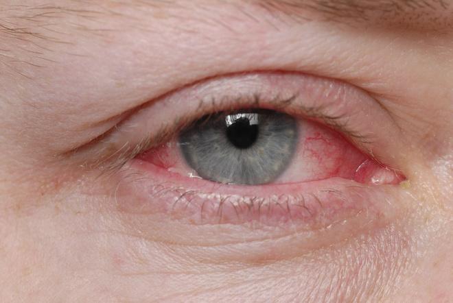 глазные капли при коньюктивите