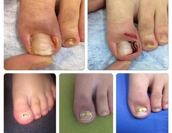 Как удалить грибок ногтей на ногах в домашних условиях