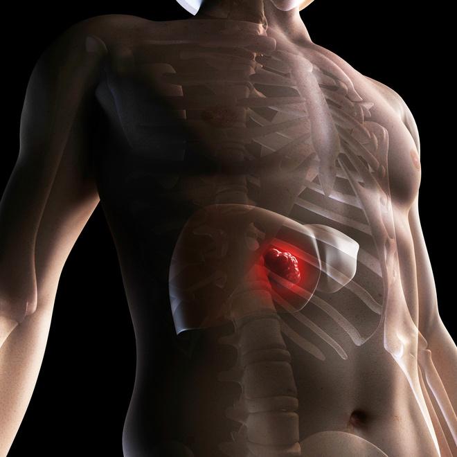 симптомы болезни печени у мужчин