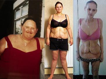 Малисса Джонс, анорексия, ожирение, диета, резекция желудка