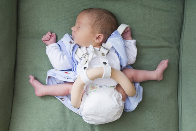 Незрелость суставов новорожденного тазобедренный сустав головки ребра