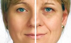 Эндоскопический фейслифтинг – новая технология омоложения лица