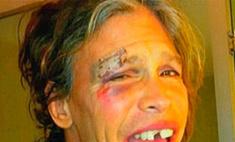 Стивен Тайлер показал ужасающие фотографии своего разбитого лица