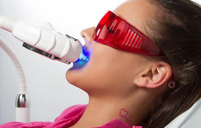 Отбеливание зубов по технологии Magic White, фото