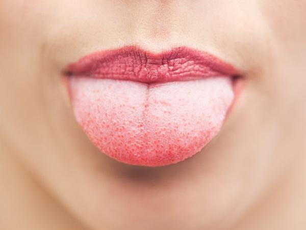 Онемение языка