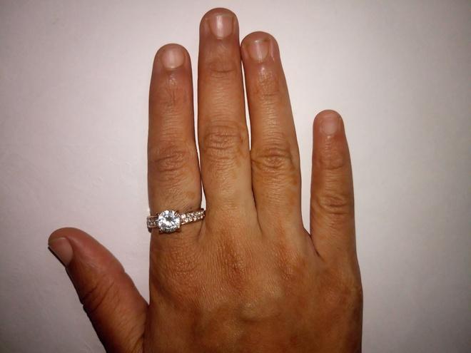отекли пальцы рук как снять кольцо