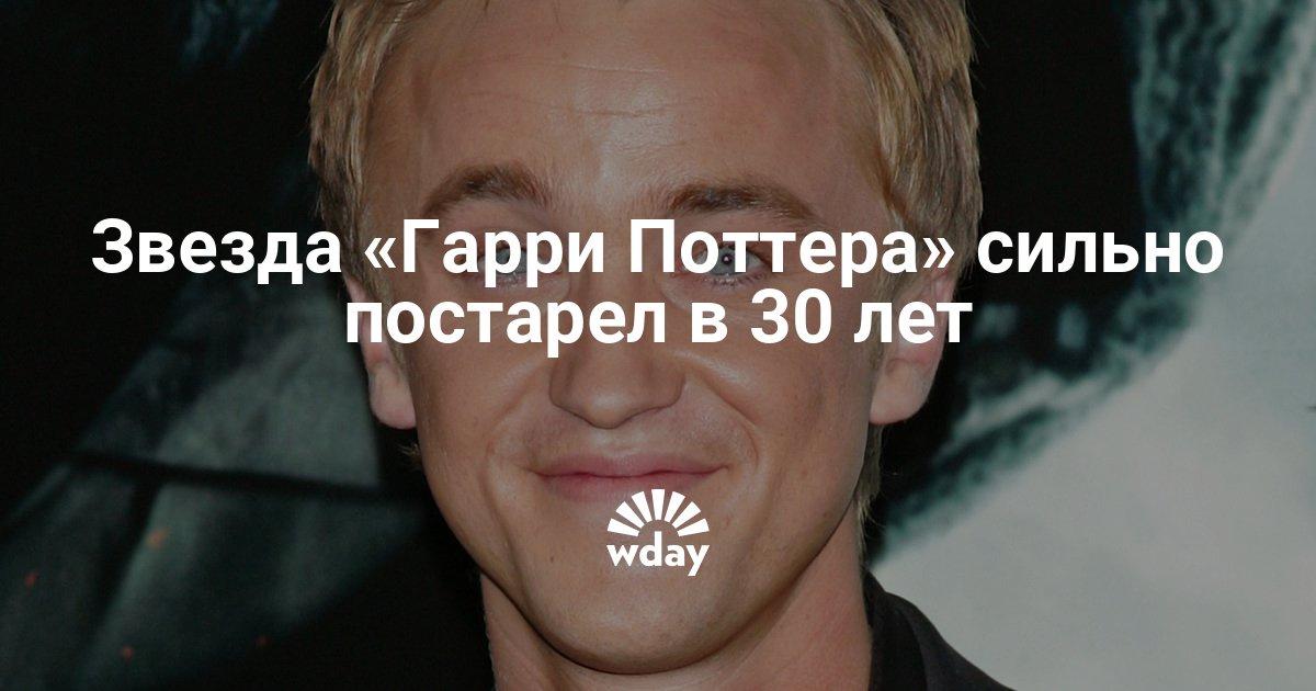 Звезда «Гарри Поттера» сильно постарел в 30 лет