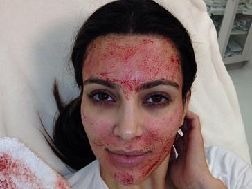 Ким Кардашьян сделала болезненную процедуру