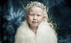 Жемчужная красота: дети-альбиносы покоряют глянец